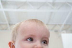 microcefalia, bebés, consejos